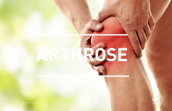 Hyaluronsäure gegen Arthrose